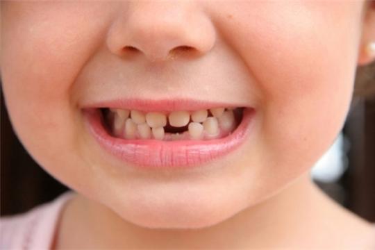 Сломанный или выбитый зуб можно сохранить!